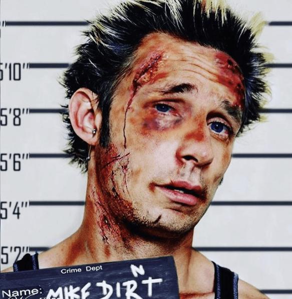 血だらけになったマイク・ダーント